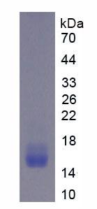 Recombinant Fibroblast Growth Factor Receptor 1 (FGFR1)
