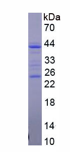 Recombinant Cluster Of Differentiation 5 (CD5)