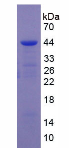 Recombinant Vitamin D Binding Protein (DBP)