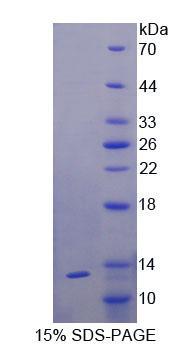 Recombinant Interleukin 6 Receptor (IL6R)