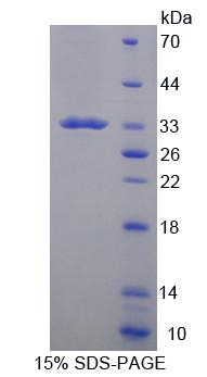 Recombinant Cluster Of Differentiation 19 (CD19)