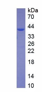 Recombinant Coagulation Factor VIII (F8)