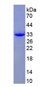Recombinant Ficolin 2 (FCN2)