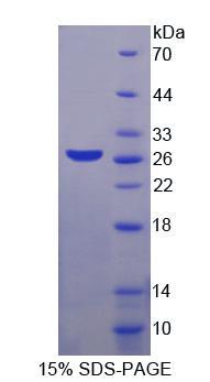 Recombinant Melanoma Antigen Family A1 (MAGEA1)