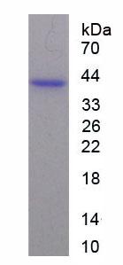 Recombinant Annexin A2 (ANXA2)