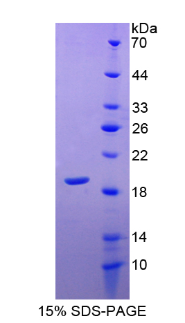 Recombinant Superoxide Dismutase 1 (SOD1)