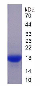 Recombinant Superoxide Dismutase 1, Soluble (SOD1)