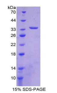 Recombinant Interleukin 33 (IL33)