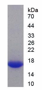Recombinant Protein Kinase N2 (PKN2)