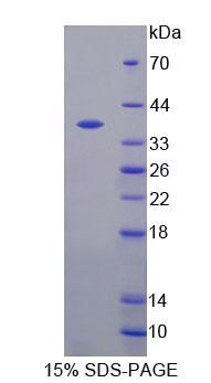 Recombinant 17-Alpha-Hydroxylase (S17aH)