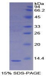 Recombinant S100 Calcium Binding Protein A4 (S100A4)