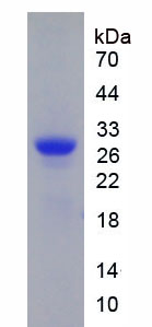Recombinant High Mobility Group Box Protein 2 (HMGB2)