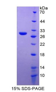 Recombinant Matrix Metalloproteinase 14 (MMP14)