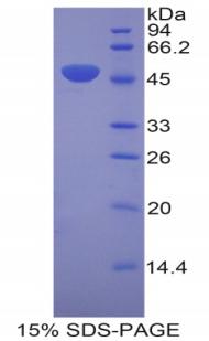 Recombinant Laminin Gamma 2 (LAMC2)