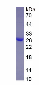 Recombinant Growth Differentiation Factor 5 (GDF5)