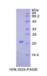 Recombinant Collagen Type VIII Alpha 1 (COL8a1)