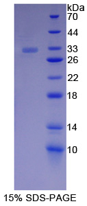 Recombinant Catenin Alpha 1 (CTNNa1)