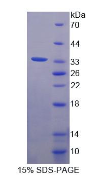 Recombinant Filamin A Alpha (FLNa)