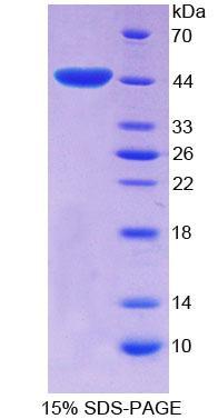 Recombinant E1A Binding Protein P300 (EP300)