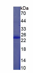 Recombinant Bleomycin Hydrolase (BLMH)