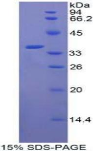 Recombinant C-Raf Proto Oncogene Serine/Threonine Protein Kinase (Raf-1)