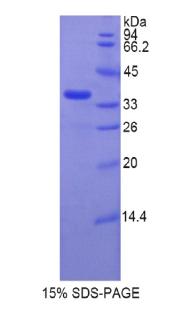 Recombinant Telomerase Reverse Transcriptase (TERT)