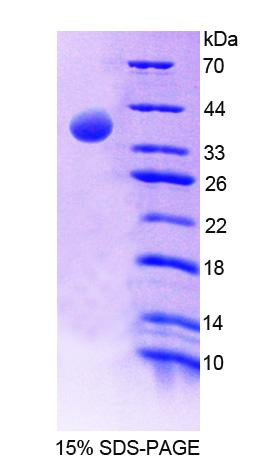 Recombinant Erythrocyte Membrane Protein Band 4.1 (EPB41)