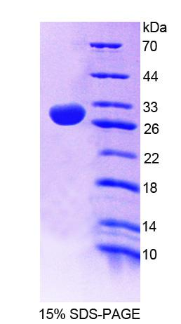 Recombinant 2',3'-Cyclic Nucleotide 3'-Phosphodiesterase (CNP)