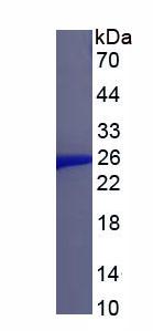 Recombinant Anterior Gradient 2 (AGR2)