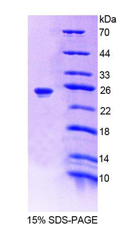 Recombinant Alanine Glyoxylate Aminotransferase (AGXT)