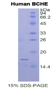 Recombinant Butyrylcholinesterase (BCHE)