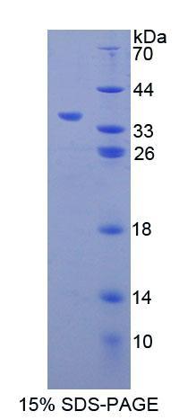 Recombinant Carbonyl Reductase 1 (CBR1)