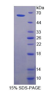 Recombinant Corneodesmosin (CDSN)