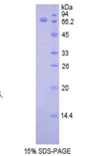 Eukaryotic Hyaluronan Synthase 1 (HAS1)