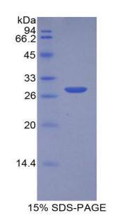 Recombinant Mercaptopyruvate Sulfurtransferase (MPST)
