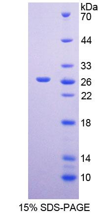 Recombinant Methionine Sulfoxide Reductase A (MSRA)