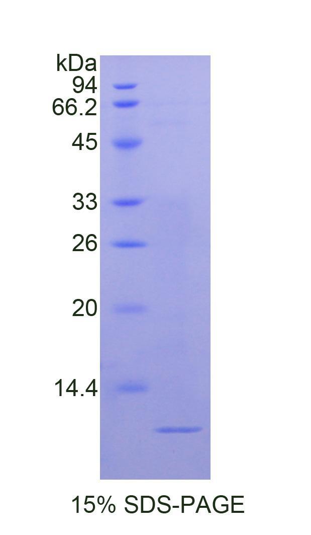 Recombinant Nucleophosmin 1 (NPM1)
