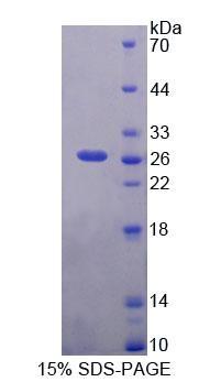 Recombinant Pericentriolar Material 1 (PCM1)