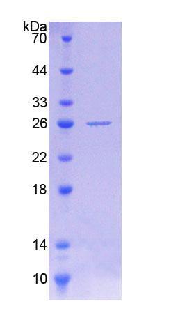 Recombinant Protein O-Mannosyltransferase 1 (POMT1)