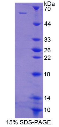 Recombinant Polypyrimidine Tract Binding Protein 1 (PTBP1)