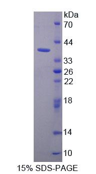 Recombinant Purine Rich Element Binding Protein A (PURA)