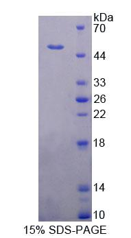 Recombinant Pseudouridylate Synthase 1 (PUS1)