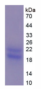 Recombinant Peripheral Myelin Protein 22 (PMP22)