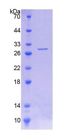 Recombinant Phenylalanine Hydroxylase (PAH)