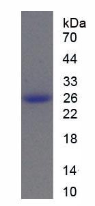 Recombinant Tuberous Sclerosis Protein 1 (TSC1)