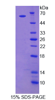 Recombinant Adenylyl Cyclase Associated Protein 2 (CAP2)