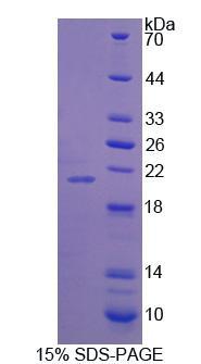Recombinant Synaptopodin (SYNPO)