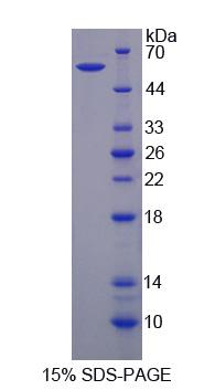 Recombinant Sortilin 1 (SORT1)
