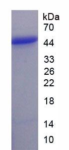 Recombinant Fibroblast Growth Factor 21 (FGF21)