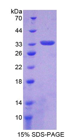 Recombinant Platelet Derived Growth Factor D (PDGFD)